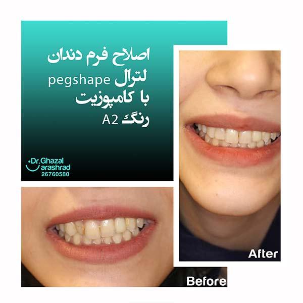 اصلاح فرم دندان لترال با کامپوزیت رنگ A2