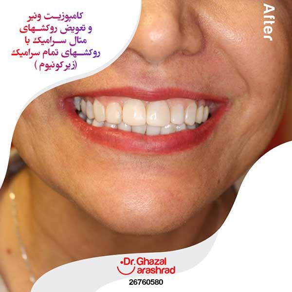 کامپوزیت ونیر دندان و تعویض روکش متال سرامیک