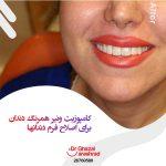 کامپوزیت ونیر همرنگ دندان ها برای اصلاح فرم