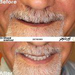 دنچر فک بالا و ادونچر فک پایین بر پایه ایمپلنت
