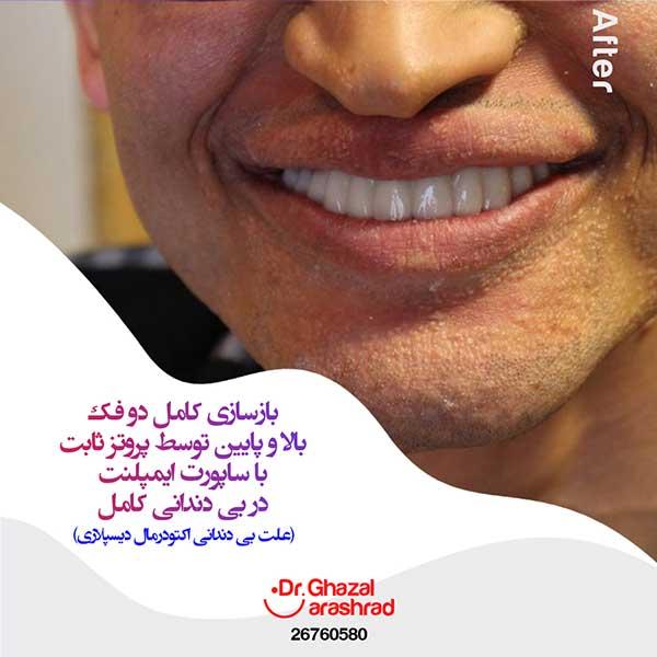 بازسازی کامل دو فک با پروتز ثابت با ساپورت ایمپلنت در بی دندانی کامل