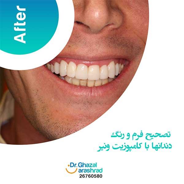 تصحیح فرم و رنگ دندان