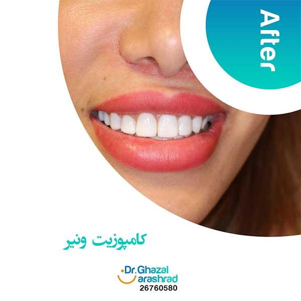 کامپوزیت ونیر دندان