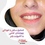 تصحیح چهار دندان قدامی با کامپوزیت ونیر