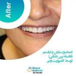 تصحیح سایش و دیاستم بین دندانی