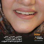 تصحیح فرم دندان