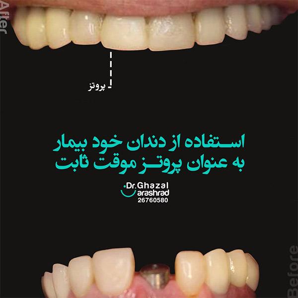 استفاده از دندان خود بیمار به عنوان پروتز موقت ثابت