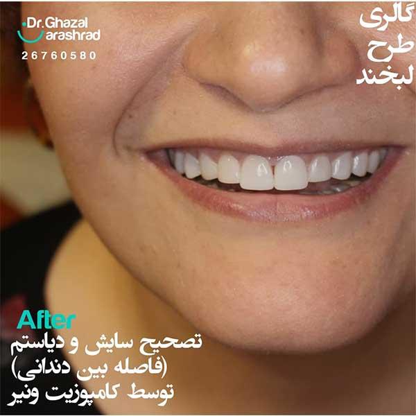 تصحیح سایش و دیاستم (فاصله بین دندانی)