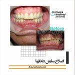 اصلاح سایش دندان ها