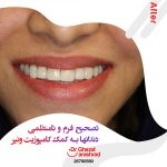 تصحیح نامنظمی دندان با کامپوزیت ونیر