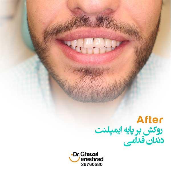 روکش بر پایه ایمپلنت دندان قدامی
