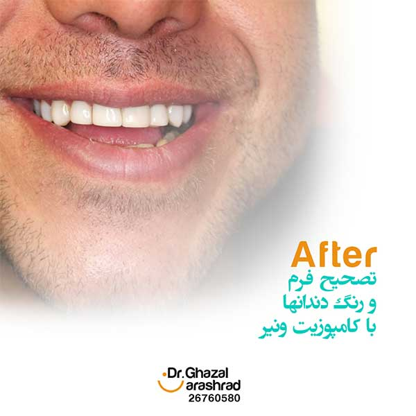 کامپوزیت ونیر دندان: تصحیح فرم و رنگ دندان