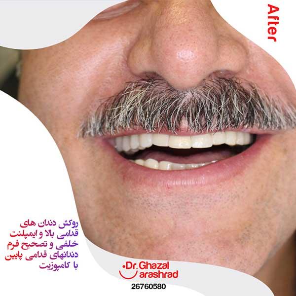 تصحیح فرم دندان قدامی پایین با کامپوزیت