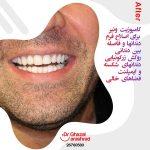 اصلاح فرم دندان با کامپوزیت ونیر