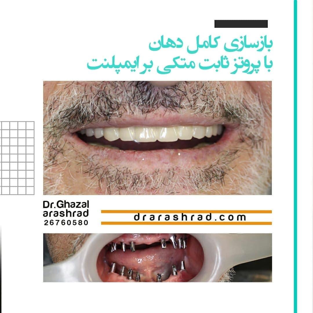 بازسازی کامل دهان با پروتز ثابت متکی بر ایمپلنت