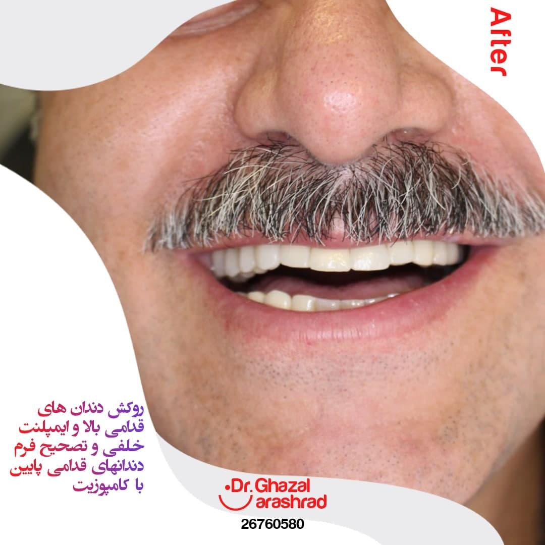ایمپلنت دندان های خلفی
